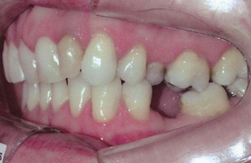 Tratamento da Classe II no perfil côncavo – reabilitação com implantes ou fechamento dos espaços?