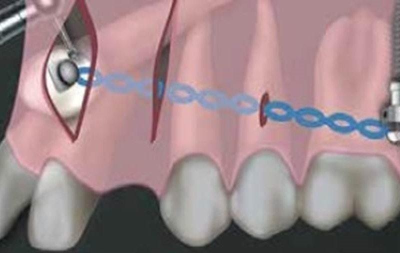 Coluna Ortodontia e Ideias – Tracionamento de canino incluso por meio da técnica V.I.S.T.A. – relato de caso