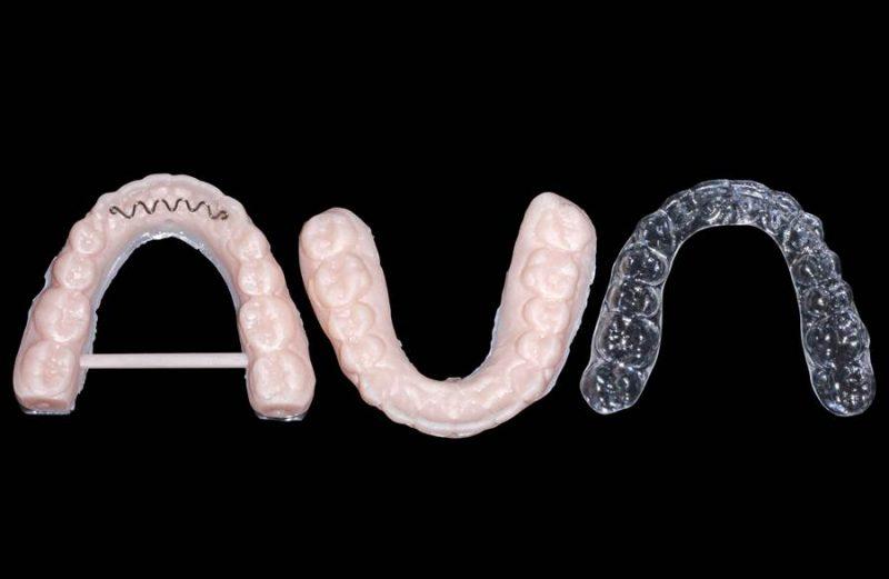 Tratamento da má oclusão de Classe II em adultos com braquetes autoligados e retração com mini-implantes extra-alveolares – Relato de caso