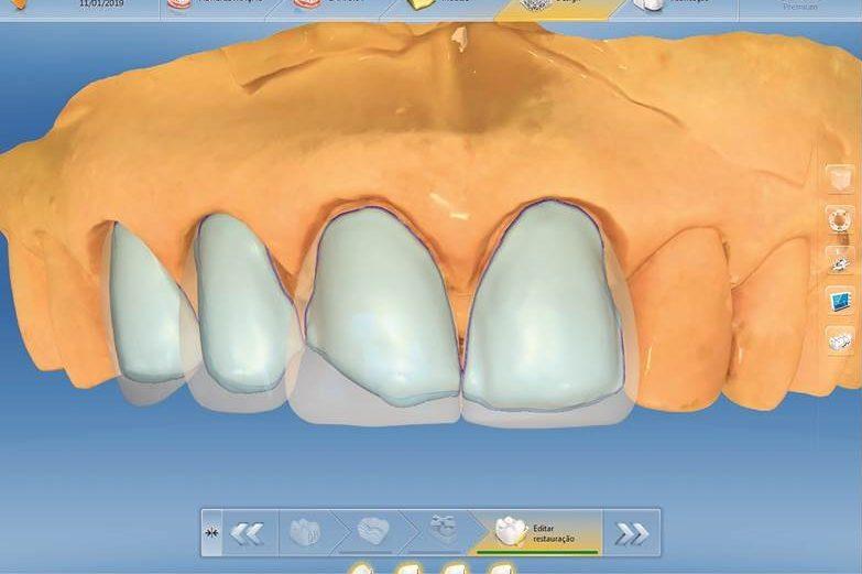 Reabilitação anterior imediata com CAD/CAM