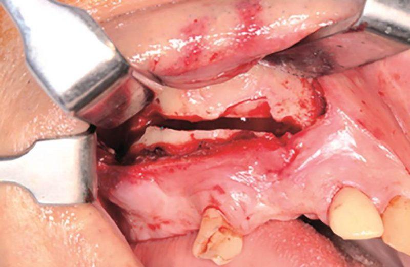 Restabelecimento de espaço interoclusal através de osteotomia segmentar da maxila para viabilização de reabilitação protética – relato de caso
