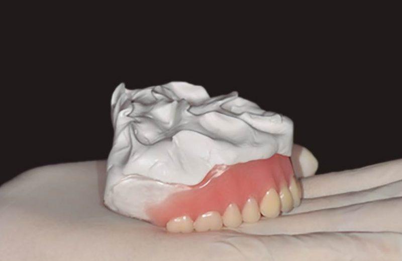 Desafio na obtenção desafio na obtenção da relação maxilomandibular durante a confecção de prótese total convencional – relato de caso