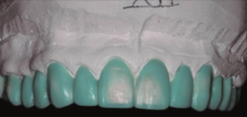 Descoloração dentária severa por tetraciclina: Restauração com Laminado de Porcelana convencional – relato de caso
