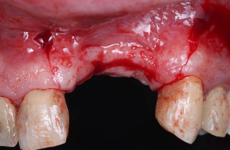 Coluna Informação e Tecnologia – O uso de parafusos tenda e malha de titânio customizada nas cirurgias de regenerações ósseas guiadas verticais