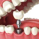 (Português do Brasil) Implante dentário? Médico lista os cuidados necessários