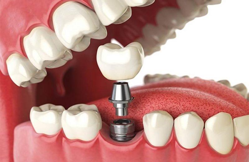 Implante dentário? Médico lista os cuidados necessários