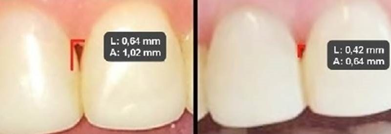 Evaluation of the effectiveness of hyaluronic acid in the reconstruction of interdental papillae – case report