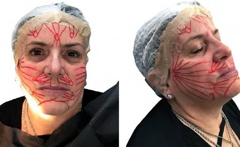 Fios absorvíveis polidioxanona no rejuvenescimento facial – relato de caso
