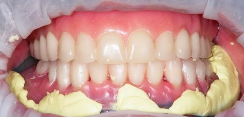 Total Prosthesis Column: Impression technique for overdentures with an existing metal bar
