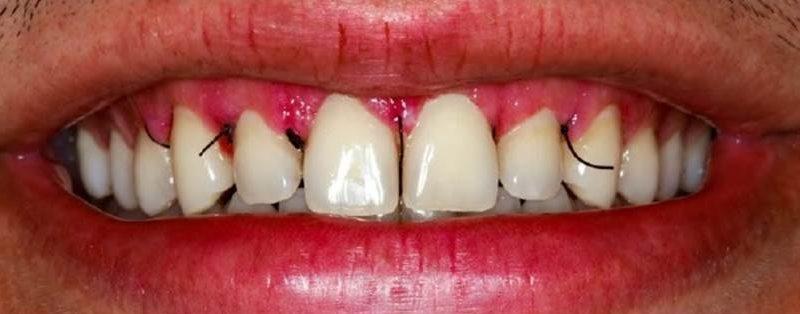 Coluna Sakamoto: Reabilitação estética anterior com associação de cirurgia periodontal e resina composta – relato de caso