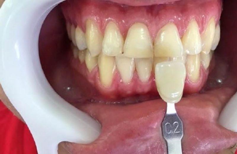 Clareamento dental e substituição de restaurações estéticas utilizando matriz de silicona – relato de caso