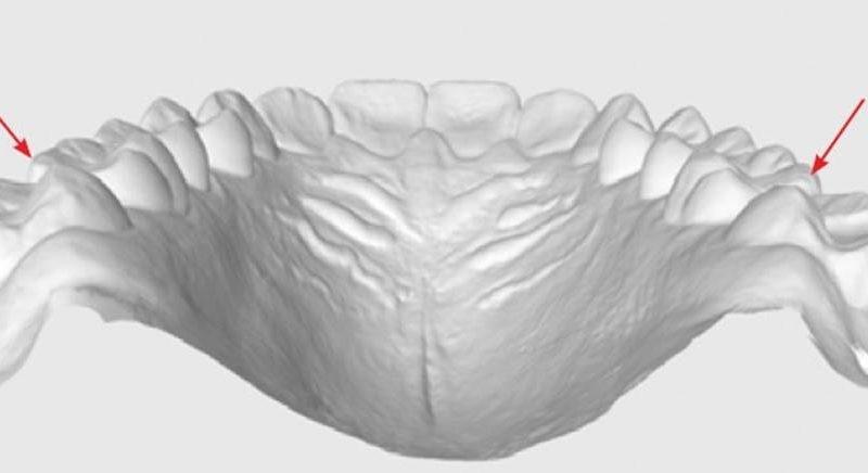 Coluna Excelência Clínica: Segundos molares: indispensáveis!