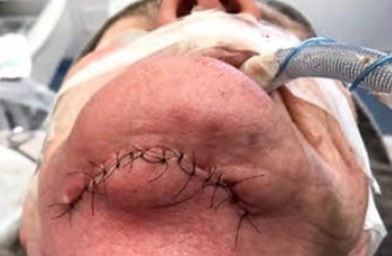 Abordagem cirúrgica hospitalar de canino retido e infectado em mandíbula atrófica