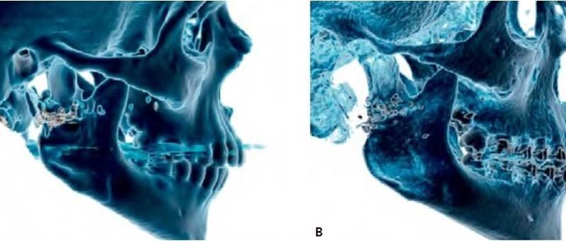 Tratamento conservador da fratura do côndilo mandibular após injúria por projétil de arma de fogo: inter-relaçao entre cirurgia e Ortodontia