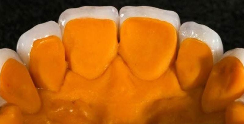 Minimally invasive ceramic veneers for cosmetic smile remodeling