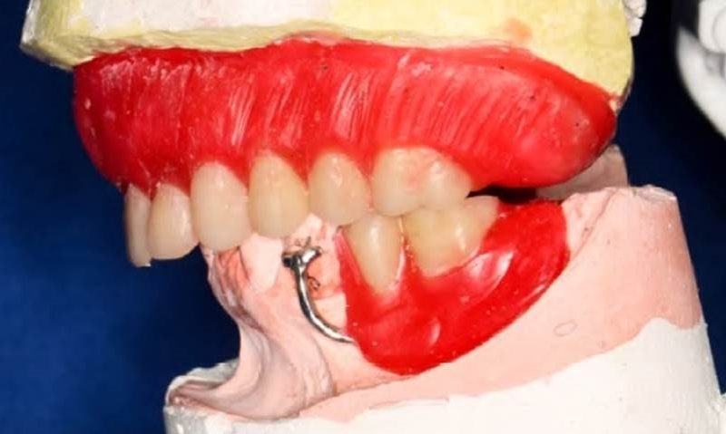 Rehabilitator treatment with maxillary immediate complete denture and mandibular removable partial denture