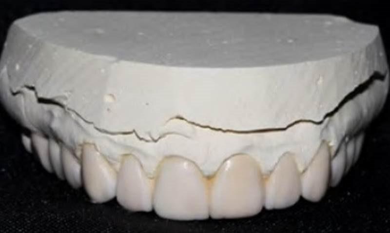 Minimally invasive laminate on aesthetic rehabilitation
