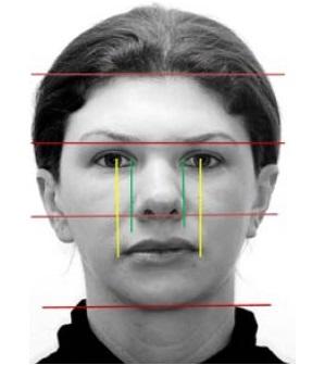Prevalência do padrão facial em crianças com rinite alérgica persistente
