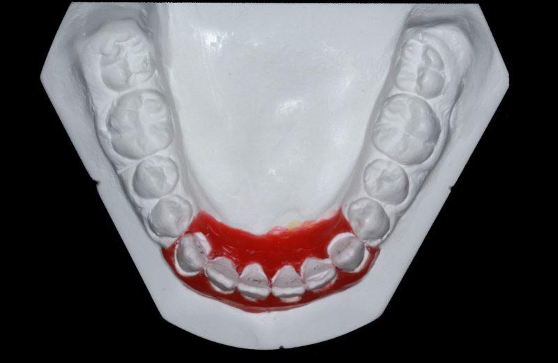 Coluna Como se Faz – Determinando diâmetro mésio-distal de dentes anteriores em paciente com agenesia dentária