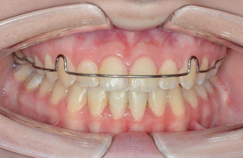 Coluna Ortodontia e Ideias – Tratamento compensatório paciente classe III esquelética vertical com técnica Buccal Shelf