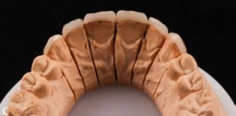 Sakamoto column – Aesthetic rehabilitation with porcelain laminate veneers associated with periodontal plastic surgery – case report
