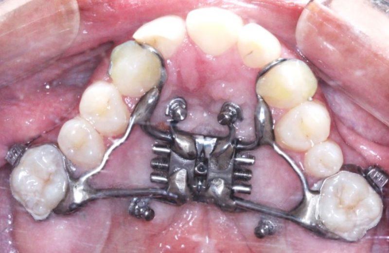 Expansão rápida da maxila apoiada em mini-implantes (MARPE) em adulto com fissura labiopalatina
