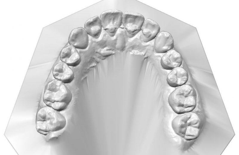 Tratamento ortodôntico-cirúrgico da Classe III em paciente com crescimento: acompanhamento de 5 anos pós-tratamento