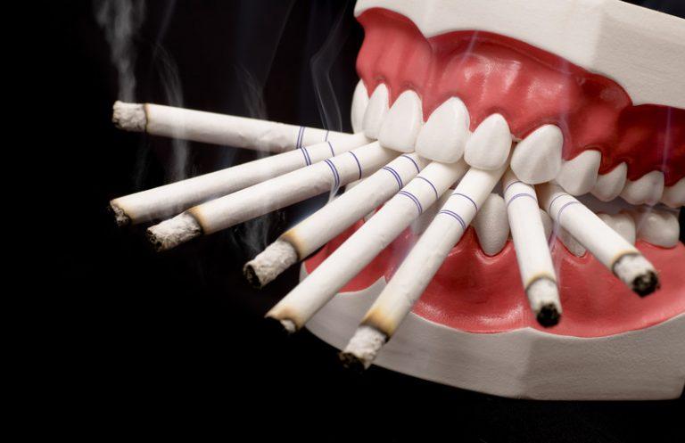 O uso habitual de produtos de tabaco e sua influência nas doenças periodontais, doenças perimplantares e implantes dentários