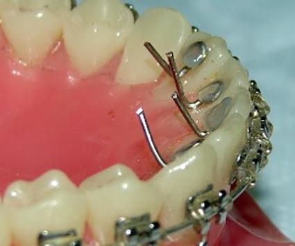 Coluna Point ofView – Esporões linguais para a interceptação da mordida aberta anterior dentária. Em uma consulta?