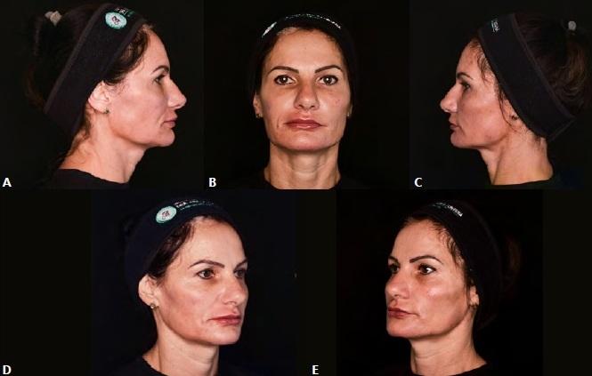 Biomodulação facial com PRGF gel – relato de caso