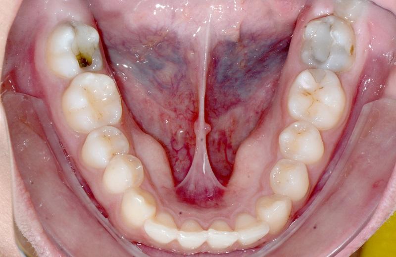 O propulsor mandibular pode ser usado com incisivos inferiores vestibularizados?