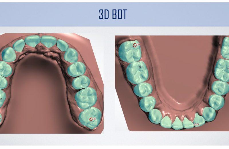 Coluna Ortodontia e Ideias – Tratamento de má oclusão Classe II com a técnica 3dbot (Ortodontia fixa tridimensional sem bráquetes e ancoragem esquelética)