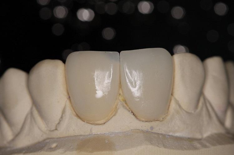 Técnica de enmascaramiento del sustrato oscurecido con lente de contacto dental cementada en una carilla menos translúcida