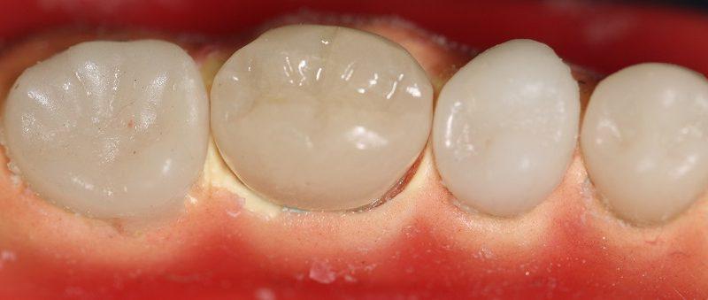 Columna que facilita la clínica diaria – Preparación de un provisional de forma simplificada y eficaz mediante técnica directa, inmediatamente por el propio dentista