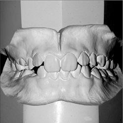 Ausencia de un incisivo inferior: ¿qué pasa con la coincidencia de las líneas medias dentales? Informe de un caso