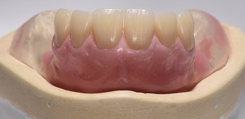 Prosthetic Column – Establishing lingualized occlusion in the rehabilitation of edentulous patients with removable complete dentures