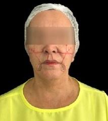 Associação de preenchedores e bioestimuladores no rejuvenescimento facial – relato de caso