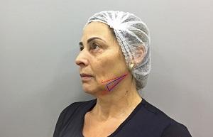 Técnica de fios de polidioxanona no terço inferior da face – relato de caso