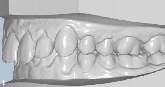 A Ortodontia Lingual CAD-CAM na Clínica Privada