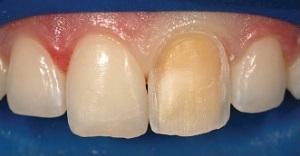 Coluna Sakamoto – Soluções estéticas com resina composta para dentes anteriores escurecidos – série de casos