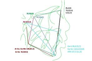 Adenotonsilectomia e Classe ii esquelética – estudo de casocontrole