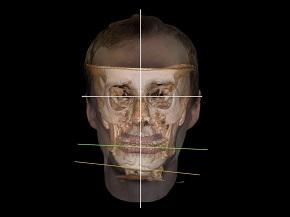CIRURGIA ORTOGNÁTICA  – A integração da ortodontia e cirurgia ortognática por meio de um diagnóstico craniofacial tridimensional em paciente com assimetria facial