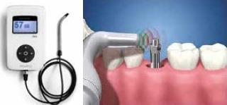 Influências dos perfis das roscas dos implantes osseointegráveis