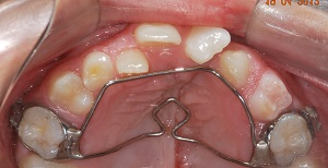 Protração maxilar ancorada em miniplacas na fissura labiopalatina – do diagnóstico à maturidade esquelética