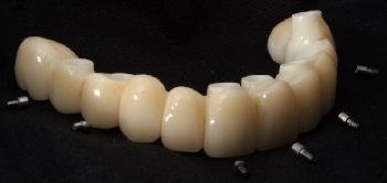 Reabilitação estética sobre implantes com prótese total fixa cerâmica – relato de caso