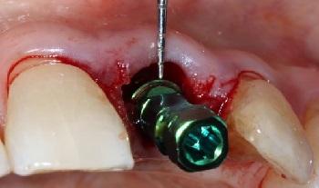 Implantes dentários em zona estética – relato de casos