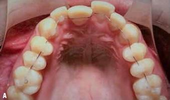 COLUNA ORTODONTIA E IDEIAS – Tratamento de mordida aberta com a técnica ortodôntica fixa sem bráquetes, com tecnologia tridimensional 3DBOT (bracketless orthodontics treatment)