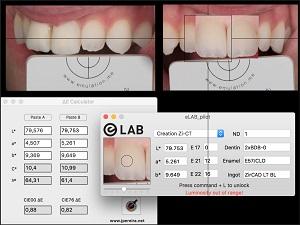 Coluna de Prótese – Modificando paradigmas na comunicação da cor entre a clínica e o laboratório: o Sistema eLAB