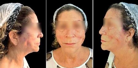 Estruturação da face por meio dos fios de polidioxanona – relato de caso