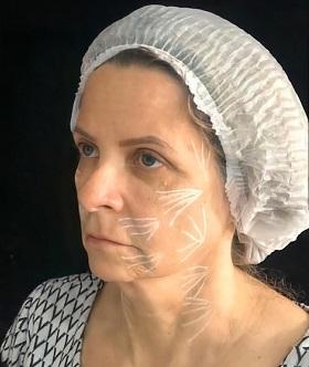Benefícios da aplicação do bioestimulador de colágeno (ácido poli-l-lático) em face e pescoço – relato de caso